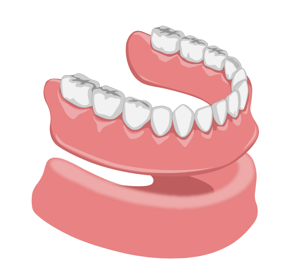 Dentier amovible du bas