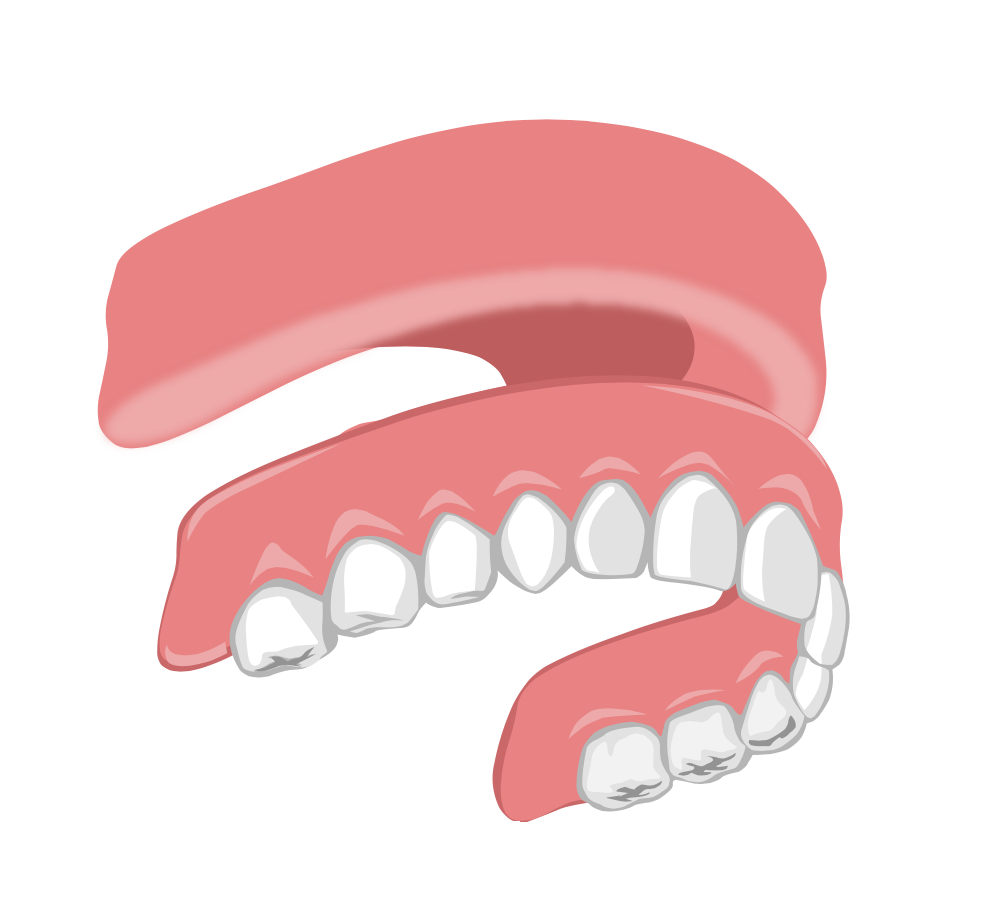 Dentier amovible du haut