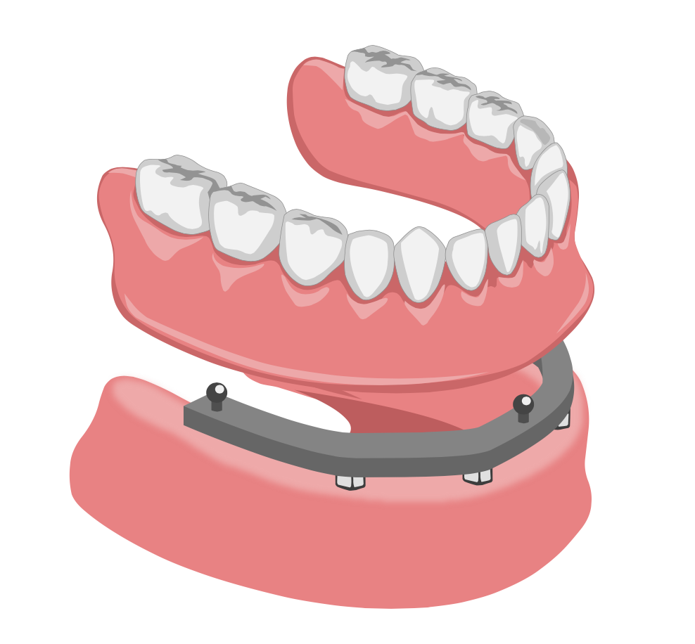 Prothèse sur implant pour de meilleur dent