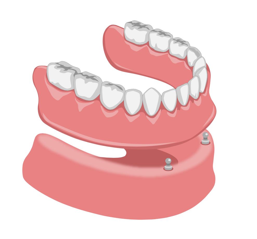 Prothèse du bas pour dents complète