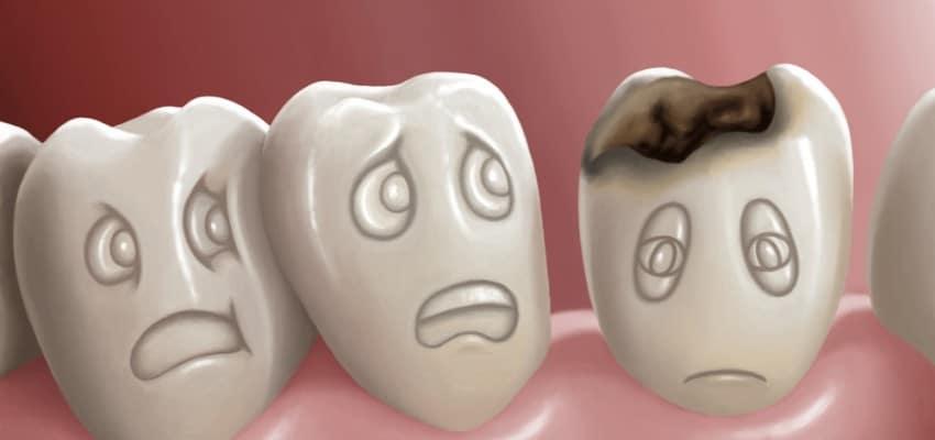 carie_prevention_Dentiste_RDP