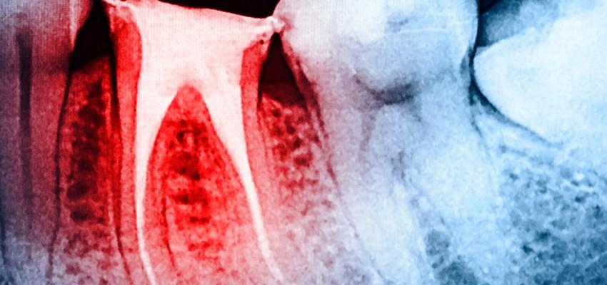 traitement de canal_Mythes_dentiste_RDP