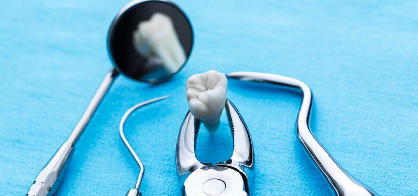L'extraction des dents de sagesse
