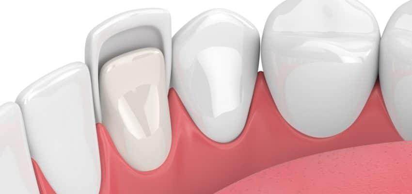 Les facettes sont une solution esthétique en dentisterie
