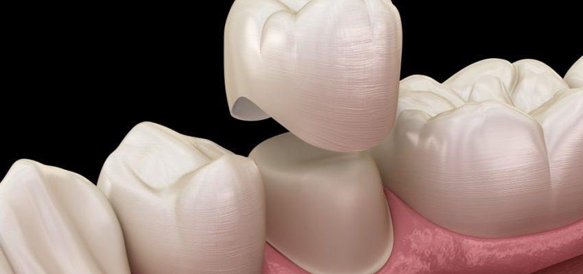 Nos dentistes conçoivent des couronnes dentaires