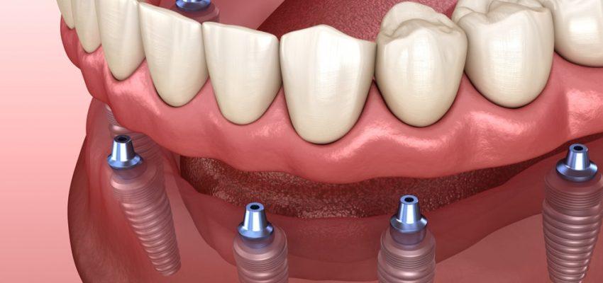 La prothèse dentaire sur implants peut être fixée avec 6 implants dentaires