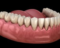 Un modèle de déchaussement des dents