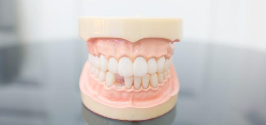 Une dent manquante sur un modèle