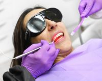 Le laser lors d'un traitement dentaire